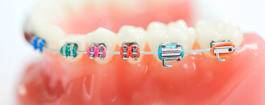 Metal bracket จัดฟันแบบติดเหล็ก