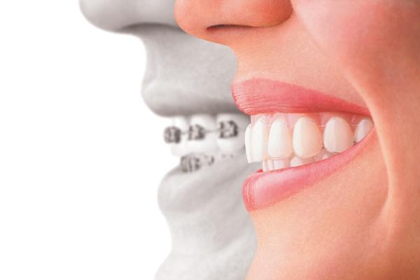 การจัดฟันแบบใส CIDC
