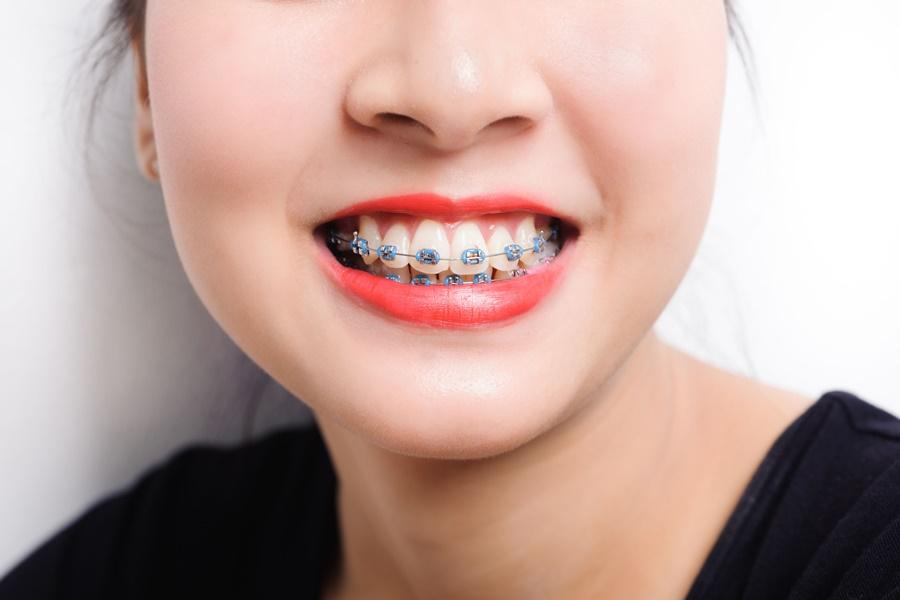 ประโยชน์ของ การจัดฟัน