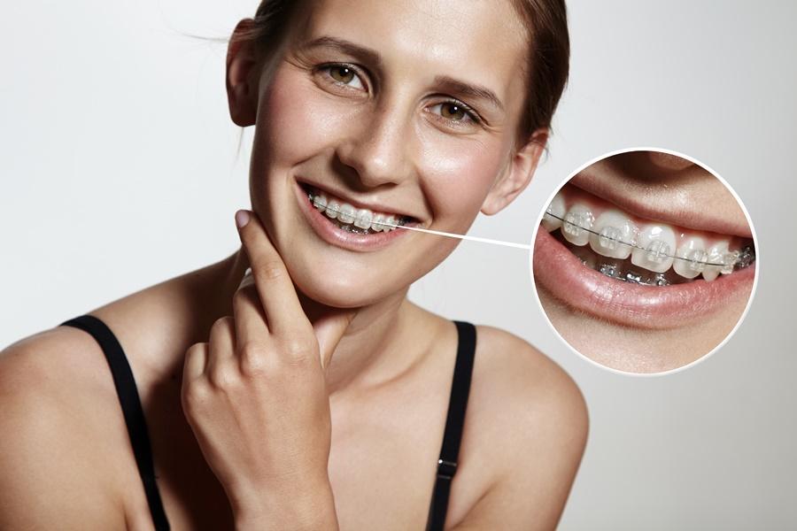 จัดฟัน ดัดฟัน ที่ ศูนย์จัดฟัน เชียงใหม่ เดนทัล เซ็นเตอร์