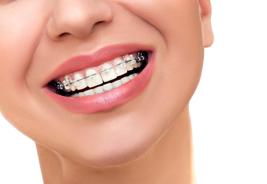 จัดฟันเซรามิก เชียงใหม่