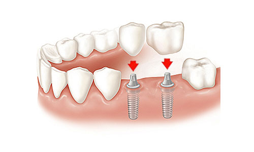 dental-implant-crowns