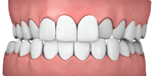 orthodontics-crossbite